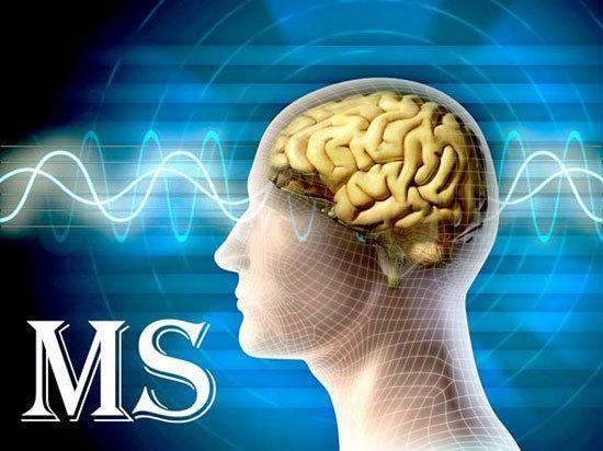 سلول های بنیادی، کلید درمان بیماری MS